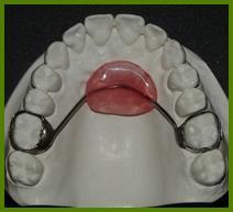 فضانگهدارنده ها دندان