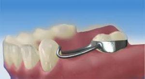 فضانگهدارنده دندان